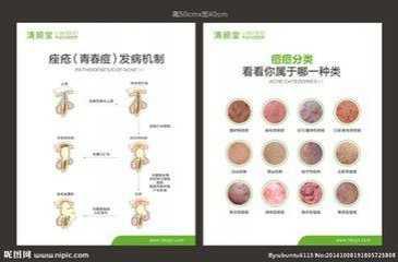 痘痘的种类 痘痘的类型都分为哪几种
