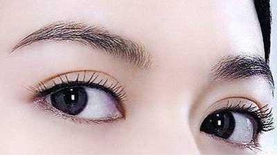 怎么样才能有双眼皮 怎样才能变成双眼皮