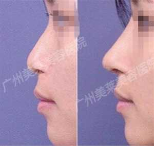 隆鼻后修复 隆鼻后恢复过程图