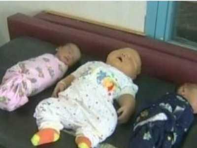 宝宝太胖需要看医生吗 医生取出巨婴宝宝